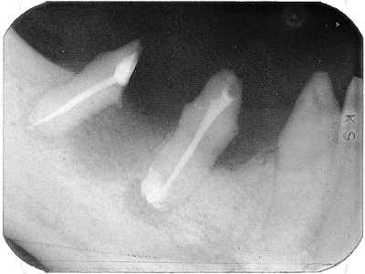 Obturation of the second bicuspid and distal root of hemisected first molar