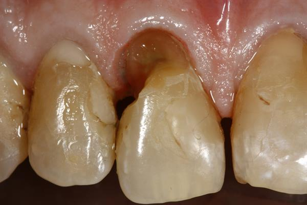 Tooth No. 8 after the gingivectomy but before final restoration