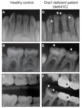 Teeth of a healthy control versus the patient with an ORAI mutation