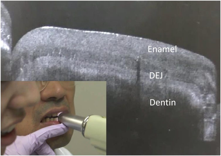 SS-OCT was used on the anterior tooth to provide real-time cross-sectional imaging